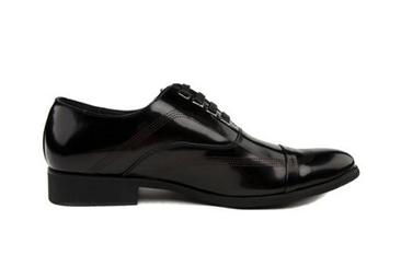 皮鞋发霉怎么处理